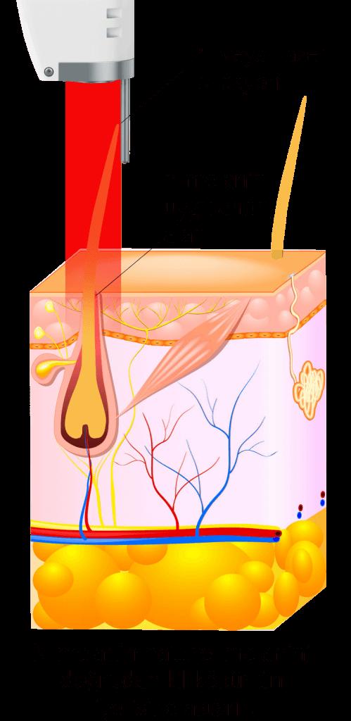 n-melaninlazerepilasyon